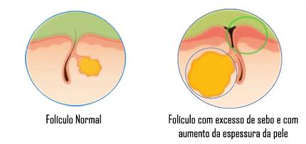 Sinais e Sintomas - Acne