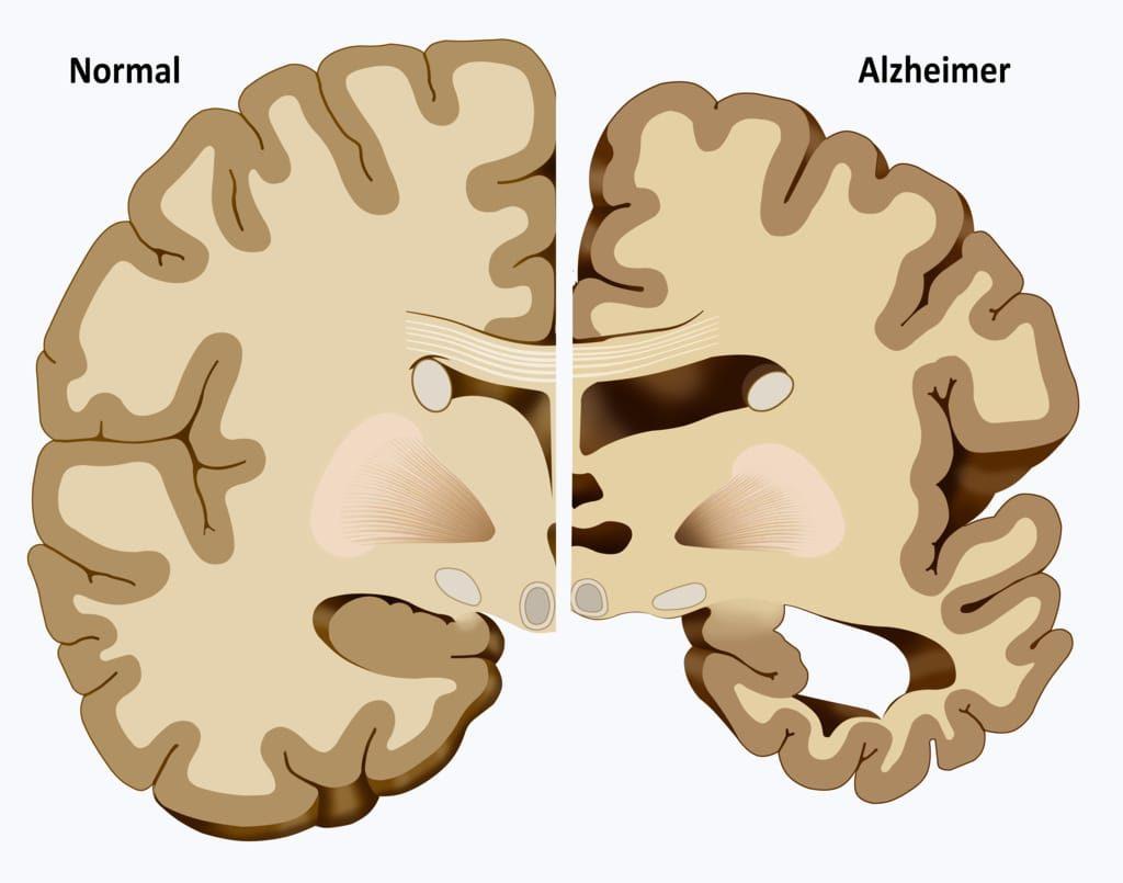 Tratamento Natural para Alzheimer