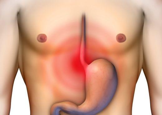 Tratamento Natural (caseiro) do Refluxo Gastroesofágico