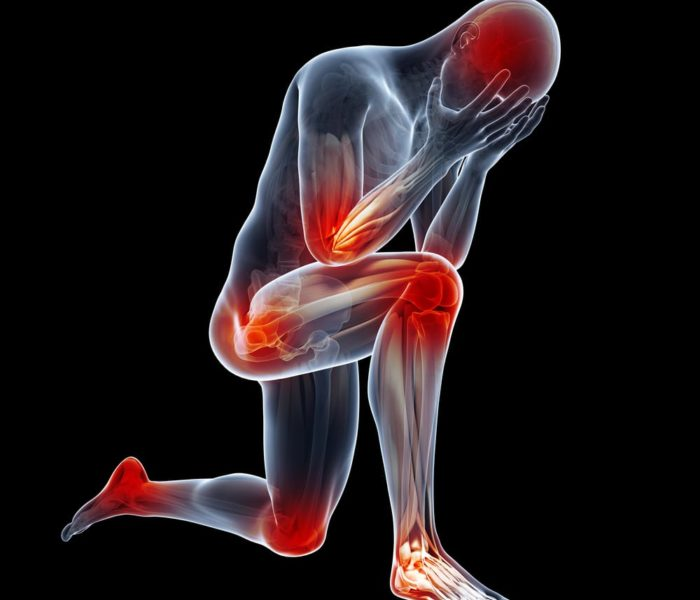 Artrite Reumatóide – o que é e quais os sintomas