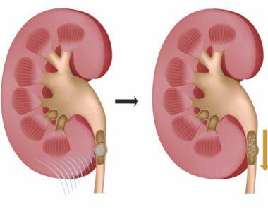 tratamento natural para aumento de prostata