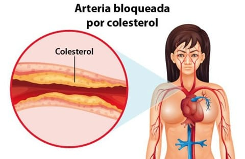 Colesterol Elevado - Sintomas, Tratamentos e Causas 1