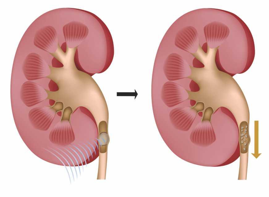 Pedra nos rins - causas e sintomas | Tratamento 1