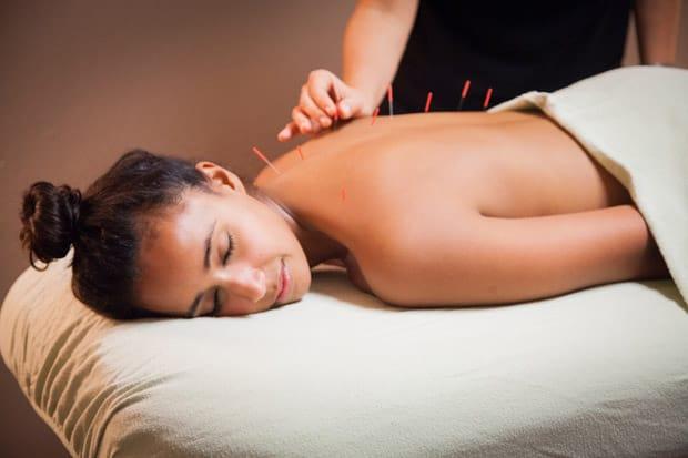 Tratamento Natural com Acupunctura