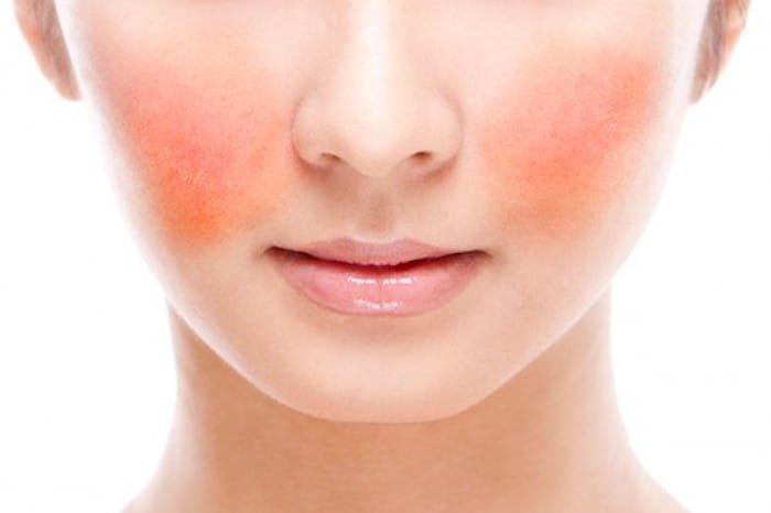 Como cuidar da pele com Rosácea