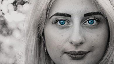 Photo of Acne – Como tratar acne?