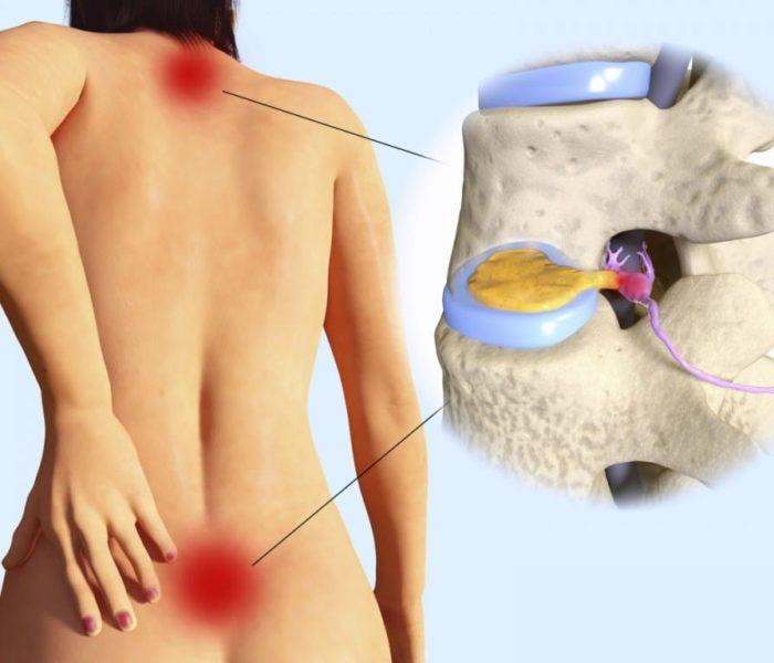 Tratamento Natural da Hérnia de Disco (discal)