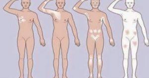 Tratamento Natural de Vitiligo