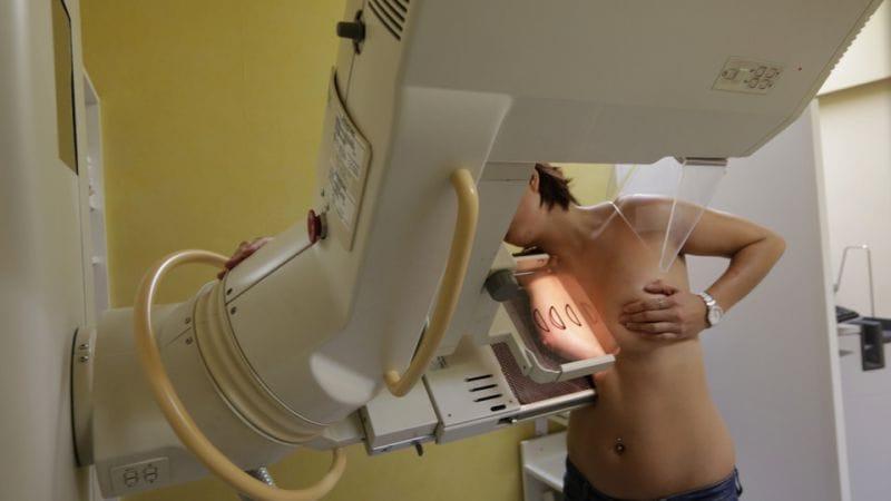 quimioterapia - Cancro