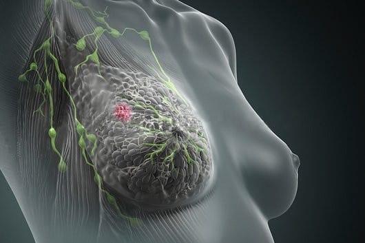 Cancro quimioterapia e efeitos secundários