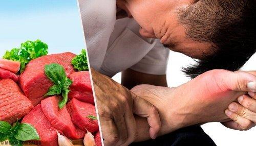 Alimentos que baixam o ácido úrico