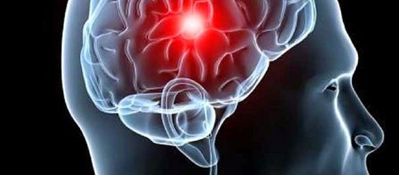 10 Alimentos que reduzem risco de AVC (acidente vascular cerebral)