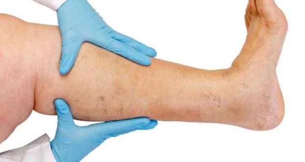 Flebite (tromboflebite superficial) - Causas, Sintomas e Tratamento 1