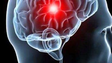 Photo of 10 Alimentos que reduzem risco de AVC (acidente vascular cerebral)