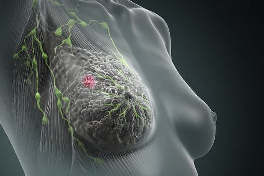 cancro quimioterapia e efeitos secundarios