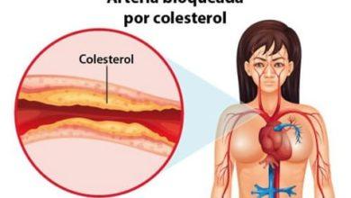 Photo of Colesterol Elevado – Sintomas, Tratamentos e Causas