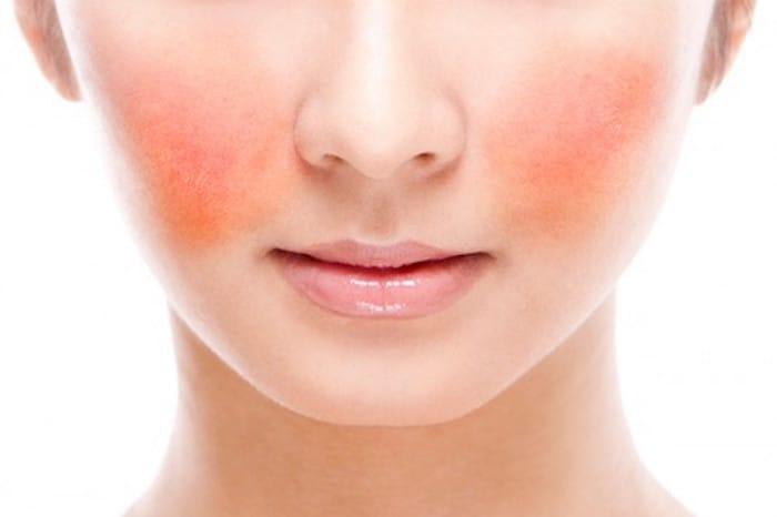 como cuidar da pele com rosacea