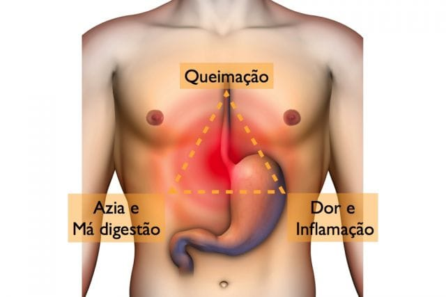 esofagite sintomas e tratamento