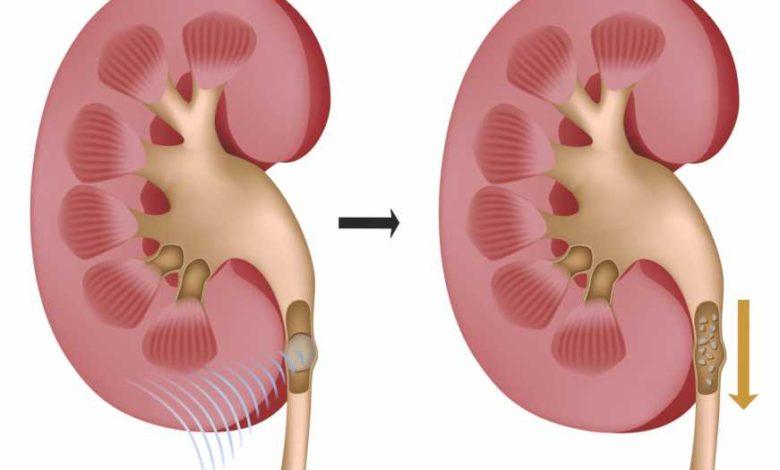 pedra nos rins causas e sintomas tratamento 2