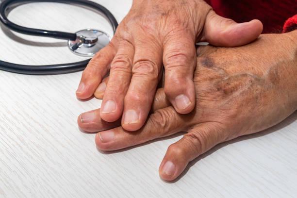 artrose sintomas